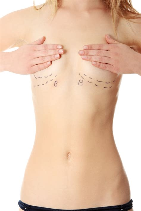 video of breast implant surgery jpg 667x1000