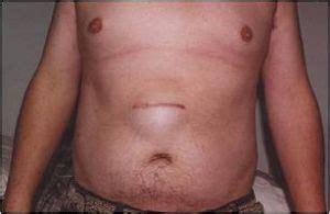 henia near belly button in adults jpg 300x195